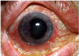 mata kena radiasi berlebihan