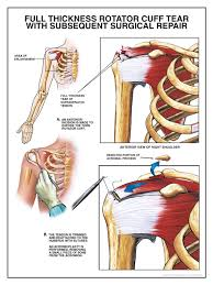 File:Rotator cuff high.jpg