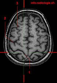Brain Mri Anatomy Central Sulcus Fissure Of Rolando