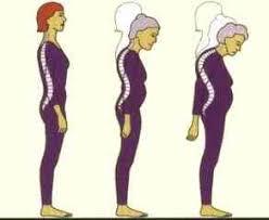 لعلاج آلام العظام وبطريقة جد سهلة ومريحة Images?q=tbn:ANd9GcQKsIG18L2kNbCALLKbQfXyaVE9pNx8OWmp5RvzRXXSxDp6sFLC