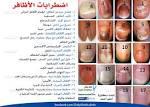 بالصور : أظافرك عنوان صحتك | مقالات طبية | كل يوم معلومة طبية