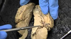 Sheep Brain Anatomy Game Sheep Brain Dissection Youtube