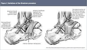 Anterior Talofibular Ligament Repair Chronic Ankle Instability El Paso U0027s Injury Doctors 915 850 0900