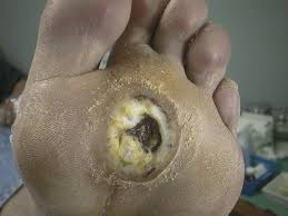 Diabetic Wound