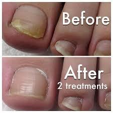 the 25 best toenail fungus laser treatment ideas on pinterest