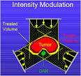 <b>intensity modulated radiation</b>