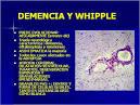 la <b>enfermedad de Whipple</b>.