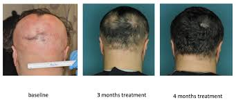 Psoriatic Arthritis And Hair Loss Autoimmune Drugs May Treat A Form Of Baldness Nbc News