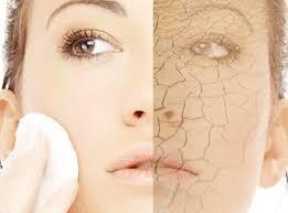 درمان خشكي پوست در هواي سرد