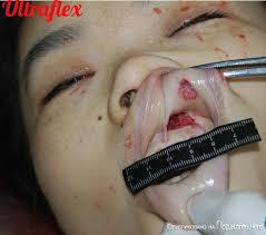 解剖 レイプ |グロ注意】中国でレイプ後メッタ刺しにされた20歳看護師女性 ...