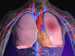 PULMONARY EMBOLISM Medical, Health & Disease Pictures & Images
