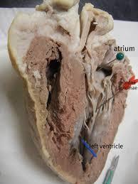 Sheep Brain Anatomy Game Sheep Heart Dissection Anatomy Corner