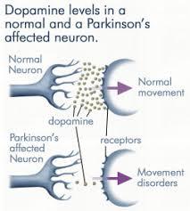 neuron pesakit parkinson