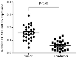 expression and clinical significance of foxe1 in papillary thyroid