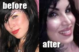 Did Kat Von D get plastic surgery? (image hosted at t2.gstatic.com)