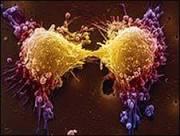BBC Brasil - Ciência & Saúde - Exame de câncer de próstata 'dá ...