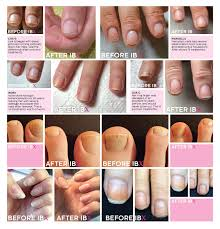 ibx before u0026 after photos lydian flash master nail technician