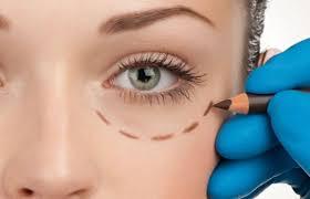 Cirurgia Plástica para Olheira