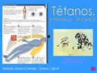 <b>Tétanos</b>.