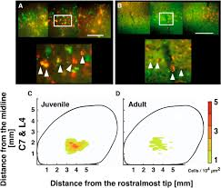 corticospinal tract development and spinal cord innervation differ