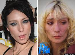 'Faces of Meth' Campaign May Not Tell the Whole Story - Meth