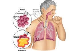 penyakit tbc, gejala tbc dan pengobatannya