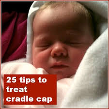 tips to treat cradle cap  Mums make lists   Pinterest