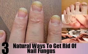3 natural ways to get rid of nail fungus how to get rid of nail