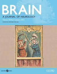 Interesting case studies on schizophrenia  Schizophrenia Case     BJPsych