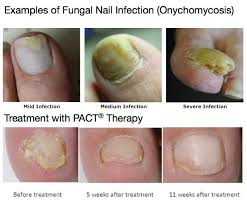 fungal nail treatments at dulwich podiatry south east london
