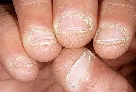 الأظافر...أسبابه والعلاج