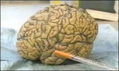 Estudo relaciona falta de memória a variação genética   BBC Brasil ...
