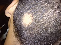 Psoriatic Arthritis And Hair Loss Alopecia Areata Wikipedia