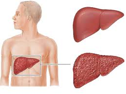 تحمي الكبد وتعالجه بطرق طبيعية؟