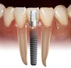 Cuento cuesta un implante dental
