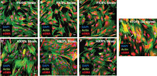 human cardiac fibroblasts adaptive responses to controlled