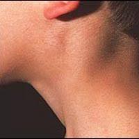 obat benjolan di leher herbal yang manjur