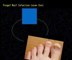 fungal nail infection children treatment nail fungus remedy you