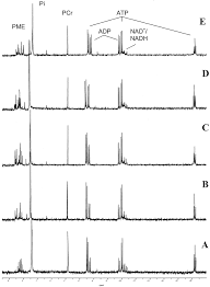 close association between the reduction in myocardial energy