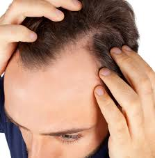 Measures To Prevent Hair Loss Hair Toppiks Hair Regrowth For Men And Hair Loss Options