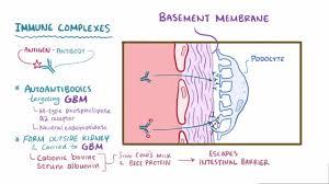 rapidly progressive glomerulonephritis rpgn genitourinary
