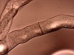 Neurospora crassa