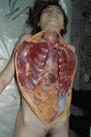 遺体 レイプ  解剖 