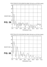 patent us20080021336 devices and methods for accelerometer based