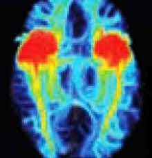 Brain Mri Anatomy Brain Imaging Anatomy Lateralization Schoolworkhelper