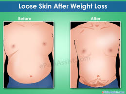 Measures To Prevent Hair Loss Loose Skin After Weight Loss Non Surgical U0026 Surgical Ways To