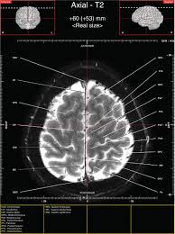 Brain Mri Anatomy Axial Images Of Tractography And Corresponding In Vivo 7 0 T Mri