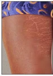 عکس, ترکهای پوستی یا استریا چه هستند و راه های درمان