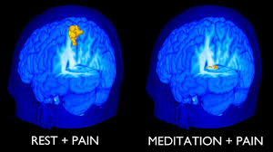 Soulager la douleur : Les avantages de la Méditation sur la Morphine Images?q=tbn:ANd9GcSi71DhxgqPwsZbFP1NSEb0fOshSHvqgNiF__dtG66J37jUqLr_z7Ffe8EI