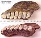 multiple rows of teeth human